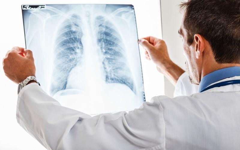 Зашто рак најчешће напада плућа и кости?